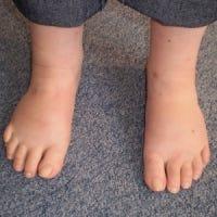 Louise's feet