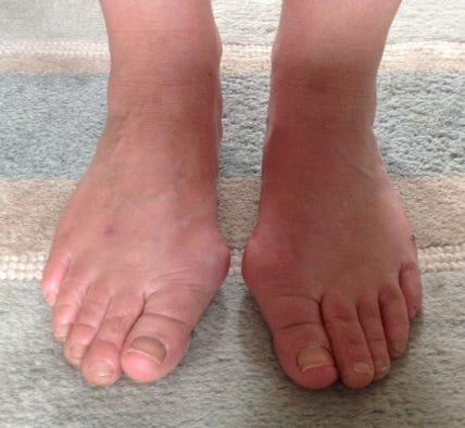 Caroline's Feet