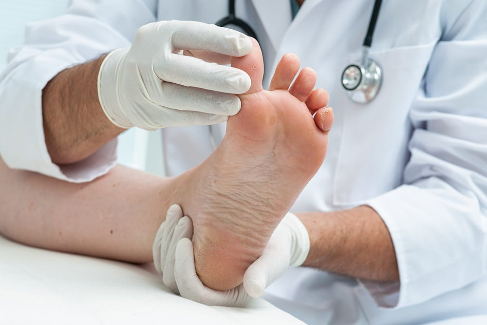 Athletes foot is a common problem