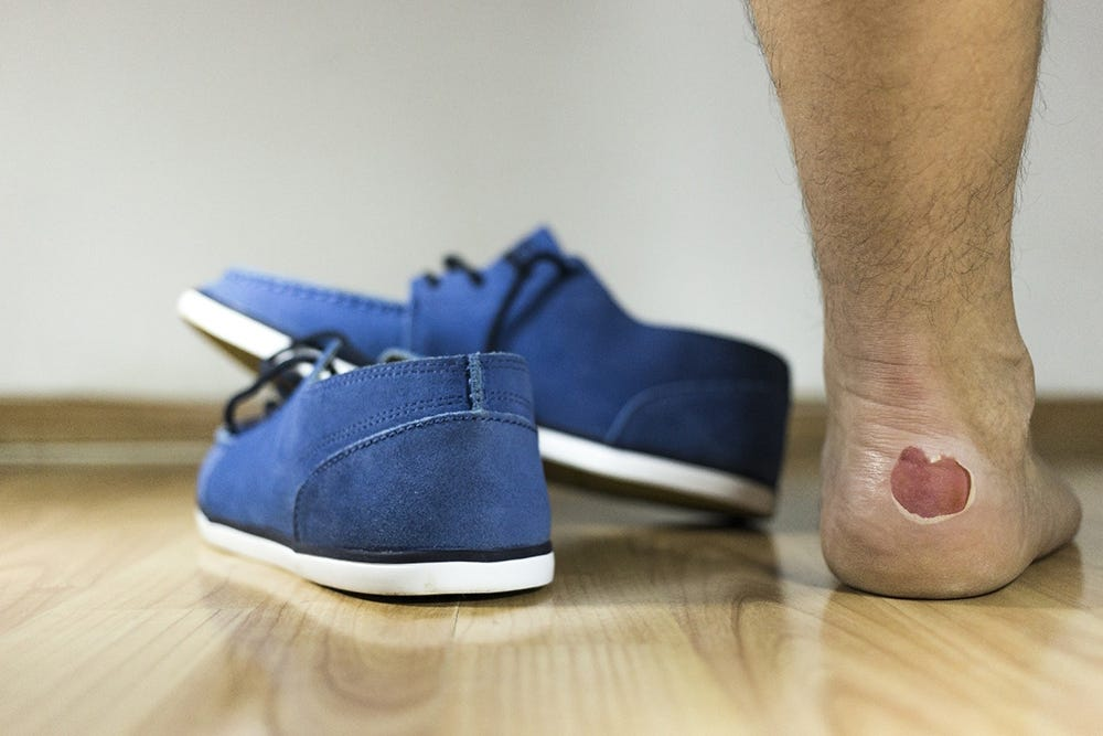 Blisters often form when wearing tight-fitting shoes