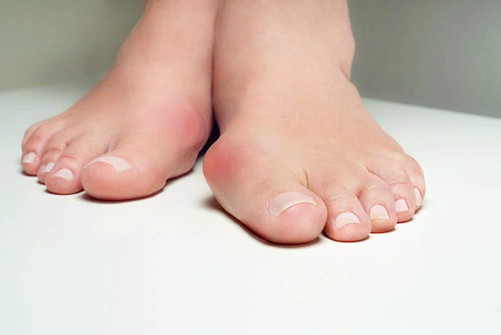 Lady suffering from bunions