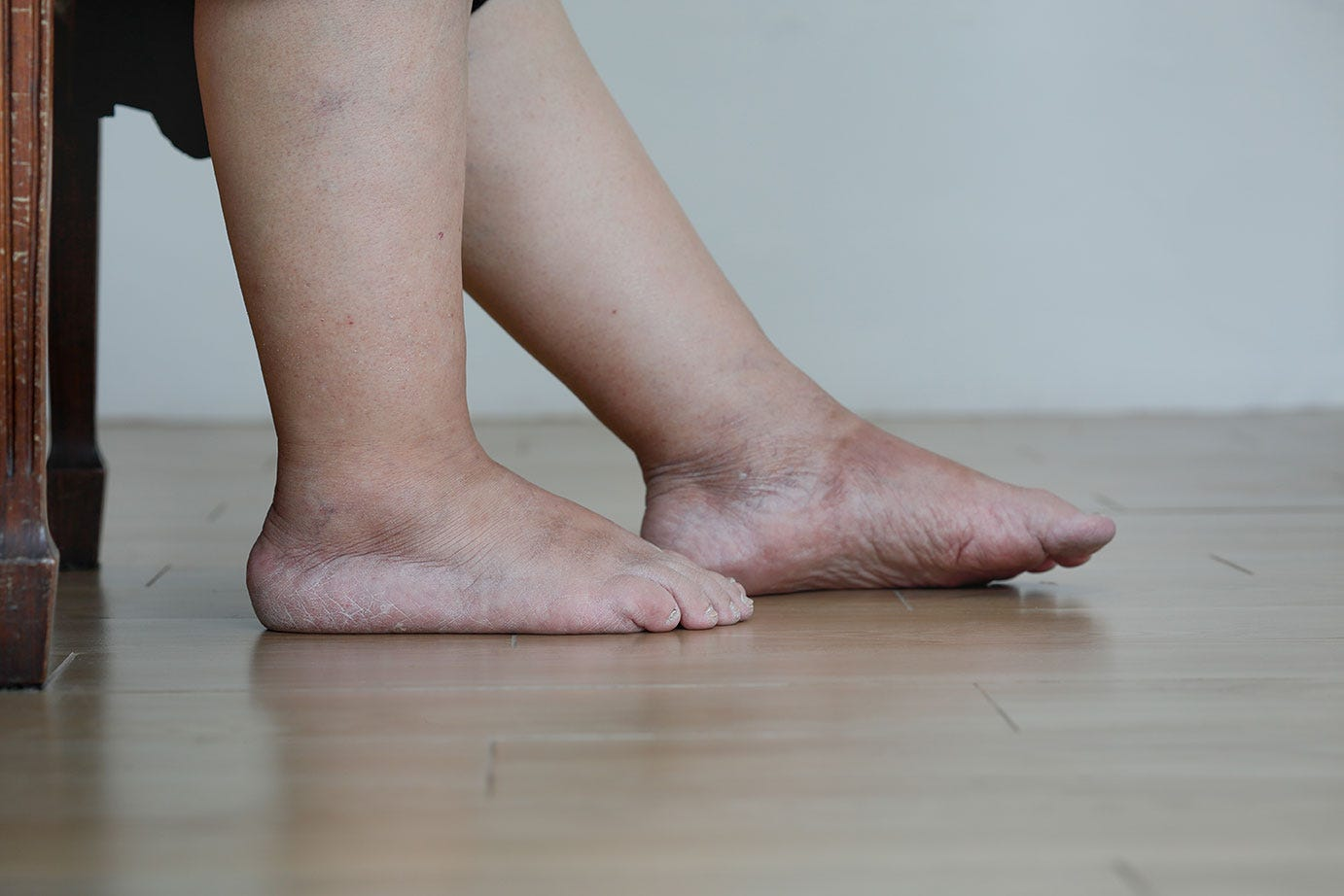 Senior woman with swollen feet and leg